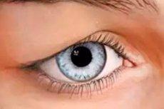 svullet övre ögonlock