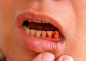 blödande tandkött gravid